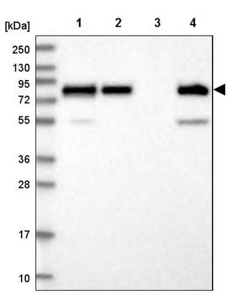 Western blot - Anti-PEX5/PER3 antibody (ab204444)