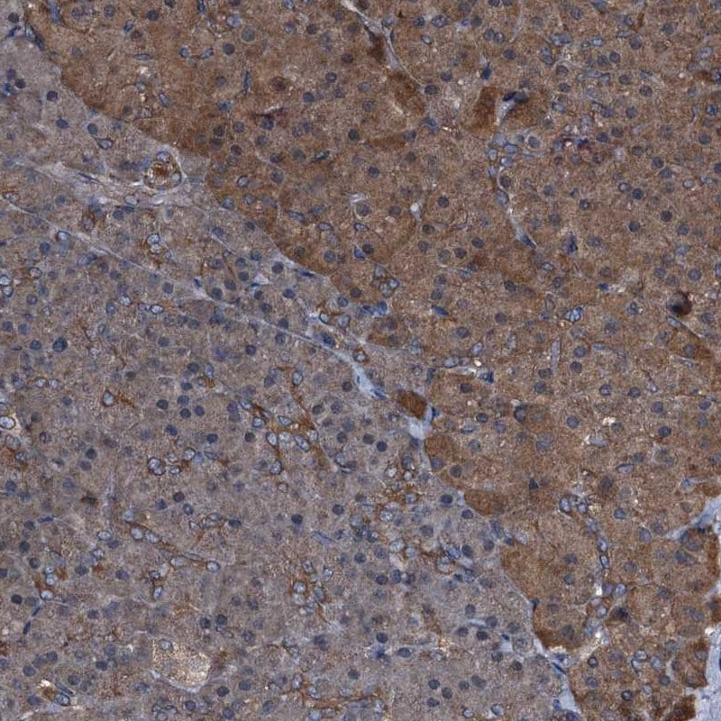 Immunohistochemistry (Formalin/PFA-fixed paraffin-embedded sections) - Anti-PEX5/PER3 antibody (ab204444)