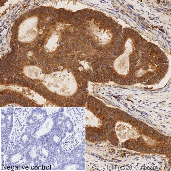 Immunohistochemistry (Formalin/PFA-fixed paraffin-embedded sections) - HRP Anti-Smad3 antibody [EP568Y] (ab204462)