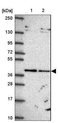 Western blot - Anti-TIM50 antibody (ab204486)
