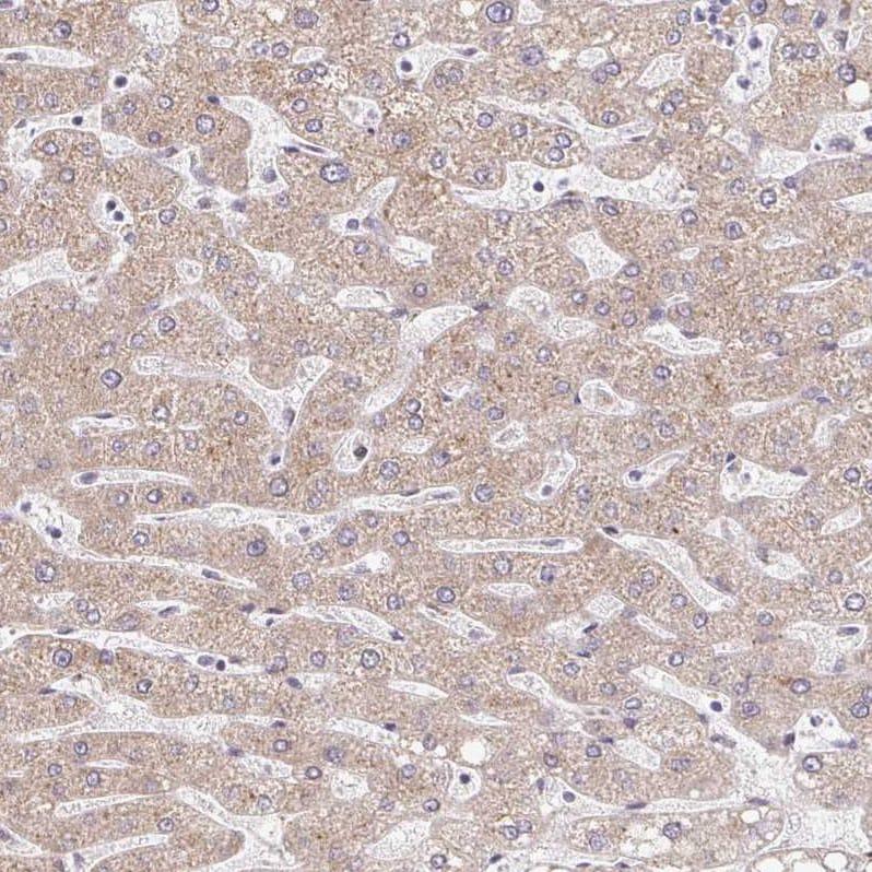 Immunohistochemistry (Formalin/PFA-fixed paraffin-embedded sections) - Anti-TIM50 antibody (ab204486)