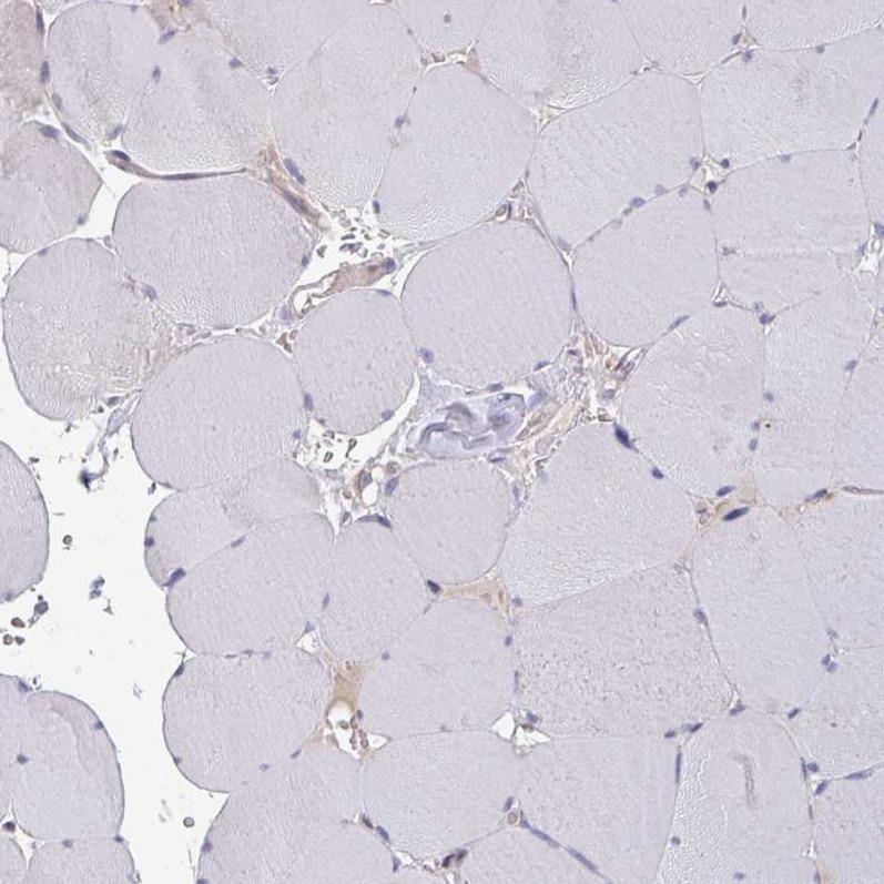 Immunohistochemistry (Formalin/PFA-fixed paraffin-embedded sections) - Anti-ELOVL1/SSC1 antibody - C-terminal (ab204489)