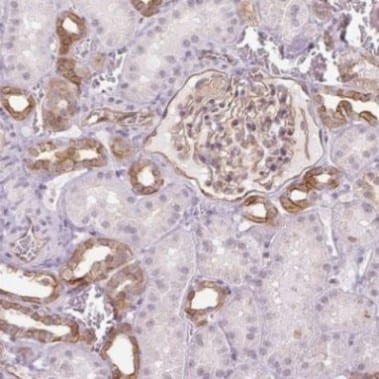 Immunohistochemistry (Formalin/PFA-fixed paraffin-embedded sections) - Anti-AIF1L antibody (ab204493)