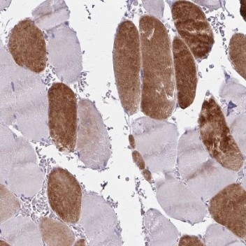 Immunohistochemistry (Formalin/PFA-fixed paraffin-embedded sections) - Anti-RASL10B antibody (ab204497)