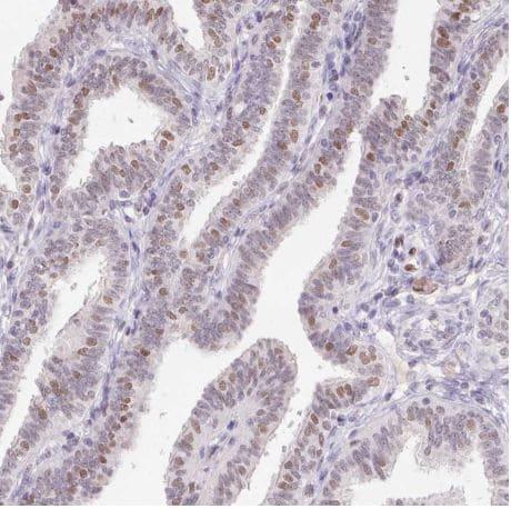 Immunohistochemistry (Formalin/PFA-fixed paraffin-embedded sections) - Anti-Transcription Factor SP9 antibody (ab204499)