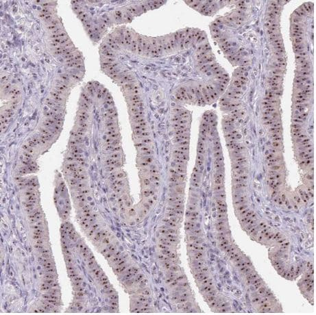 Immunohistochemistry (Formalin/PFA-fixed paraffin-embedded sections) - Anti-SARI antibody (ab204510)