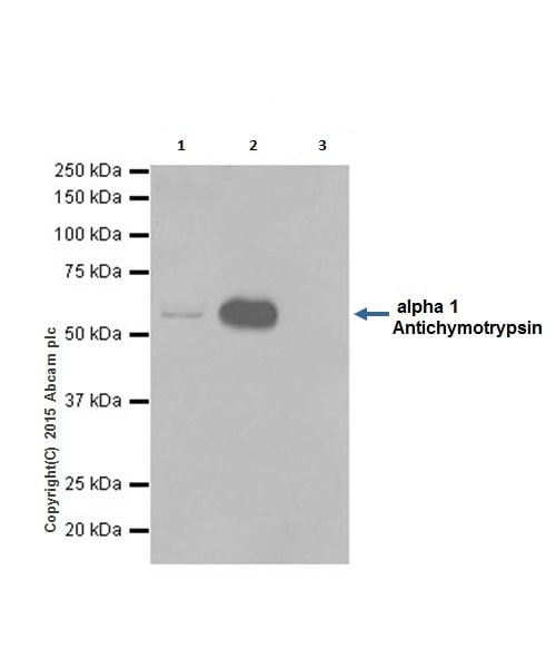 Immunoprecipitation - Anti-alpha 1 Antichymotrypsin antibody [EPR17088] (ab204514)
