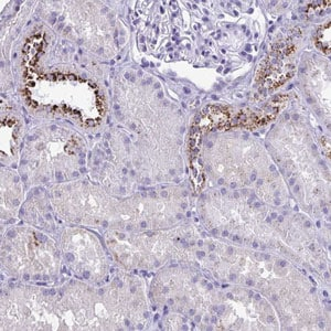 Immunohistochemistry (Formalin/PFA-fixed paraffin-embedded sections) - Anti-CPVL antibody (ab204553)