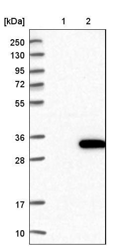 Western blot - Anti-ALKBH7 antibody (ab204568)