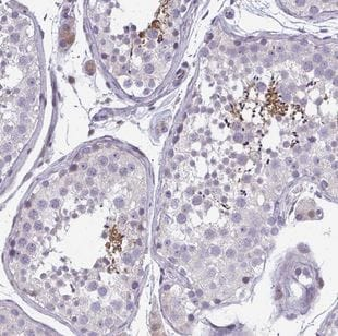 Immunohistochemistry (Formalin/PFA-fixed paraffin-embedded sections) - Anti-ODF1 antibody (ab204577)