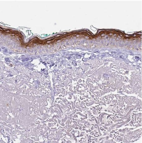 Immunohistochemistry (Formalin/PFA-fixed paraffin-embedded sections) - Anti-Keratinocyte differentiation associated protein antibody (ab204583)