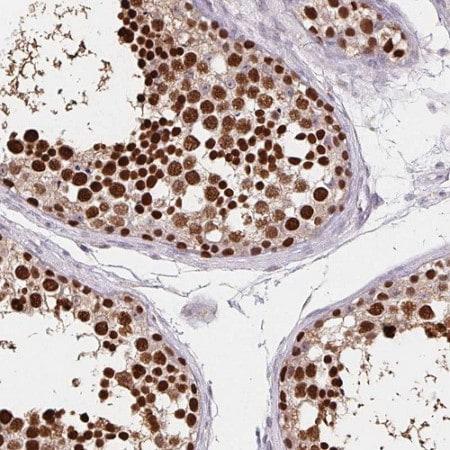 Immunohistochemistry (Formalin/PFA-fixed paraffin-embedded sections) - Anti-HDGFL1 antibody (ab204592)
