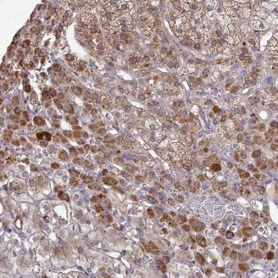 Immunohistochemistry (Formalin/PFA-fixed paraffin-embedded sections) - Anti-b4Gal-T6 antibody (ab204593)