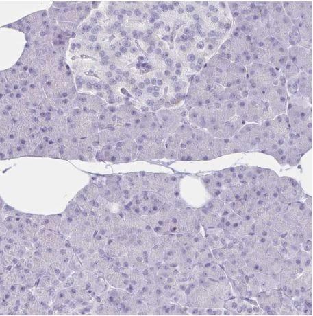 Immunohistochemistry (Formalin/PFA-fixed paraffin-embedded sections) - Anti-GNLY/Granulysin antibody (ab204594)
