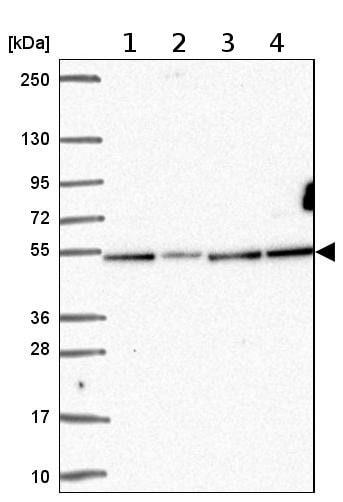 Western blot - Anti-ZNF692 antibody (ab204595)