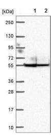 Western blot - Anti-Ankyrin repeat domain-containing protein 65 antibody (ab204604)