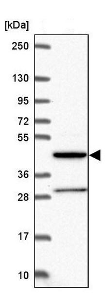 Western blot - Anti-alpha 1,2 Mannosidase IA/MAN1A1 antibody (ab204605)