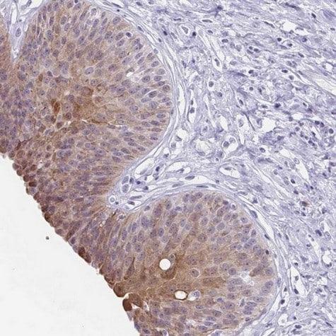Immunohistochemistry (Formalin/PFA-fixed paraffin-embedded sections) - Anti-ZFP64 antibody (ab204610)