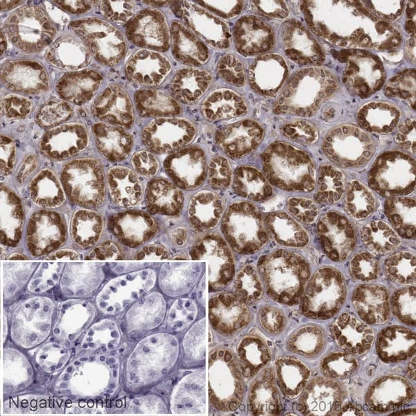 Immunohistochemistry (Formalin/PFA-fixed paraffin-embedded sections) - Anti-Activin A Receptor Type IB/ALK-4 antibody [EPR4815] (Biotin) (ab204655)