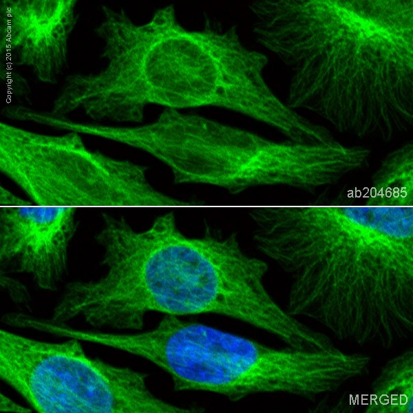 Immunocytochemistry/ Immunofluorescence - Alexa Fluor® 488 Anti-beta Tubulin antibody [EPR16774] (ab204685)