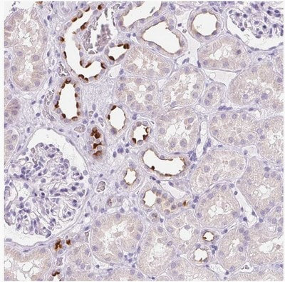 Immunohistochemistry (Formalin/PFA-fixed paraffin-embedded sections) - Anti-ATP6V0A4 antibody (ab204737)