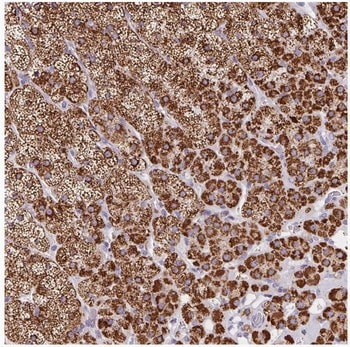 Immunohistochemistry (Formalin/PFA-fixed paraffin-embedded sections) - Anti-ADX antibody (ab204738)