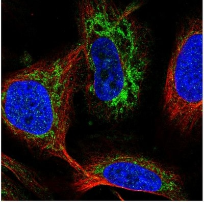 Immunocytochemistry/ Immunofluorescence - Anti-ADX antibody (ab204738)