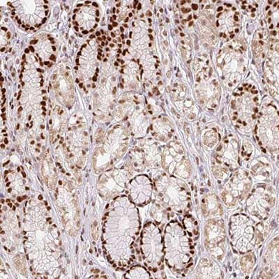 Immunohistochemistry (Formalin/PFA-fixed paraffin-embedded sections) - Anti-POLD3 antibody (ab204740)