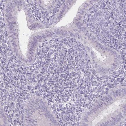 Immunohistochemistry (Formalin/PFA-fixed paraffin-embedded sections) - Anti-Uroplakin II/UPII antibody (ab204756)