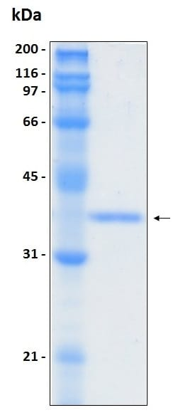 SDS-PAGE - Recombinant Human KAL1 protein (ab204766)