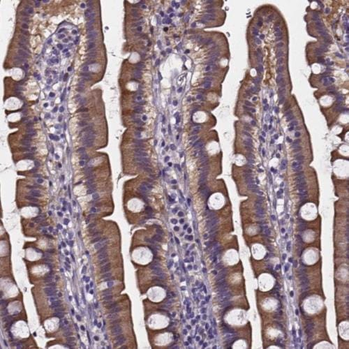 Immunohistochemistry (Formalin/PFA-fixed paraffin-embedded sections) - Anti-ANKRD43 antibody (ab204782)