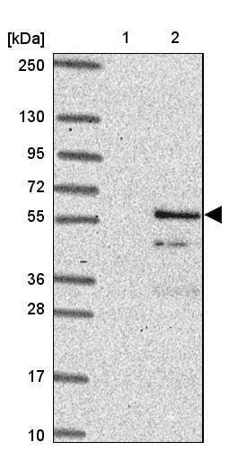 Western blot - Anti-Glycogenin 2 antibody (ab204784)