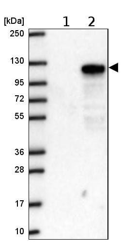 Western blot - Anti-CXorf20 antibody (ab204795)