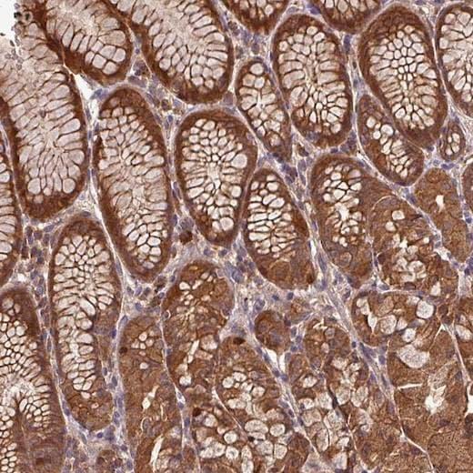 Immunohistochemistry (Formalin/PFA-fixed paraffin-embedded sections) - Anti-PN-I antibody (ab204800)