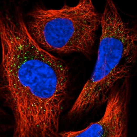 Immunocytochemistry/ Immunofluorescence - Anti-PEX13 antibody (ab204841)
