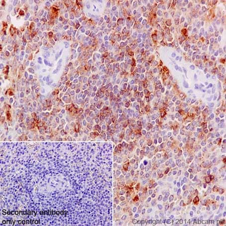 Immunohistochemistry (Formalin/PFA-fixed paraffin-embedded sections) - Anti-MMP9 antibody [EP1254] - BSA and Azide free (ab204850)