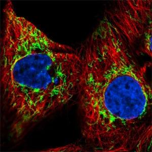 Immunocytochemistry/ Immunofluorescence - Anti-GBAS antibody (ab204890)