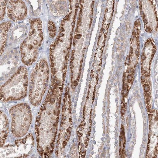 Immunohistochemistry (Formalin/PFA-fixed paraffin-embedded sections) - Anti-TACC2 antibody (ab204891)
