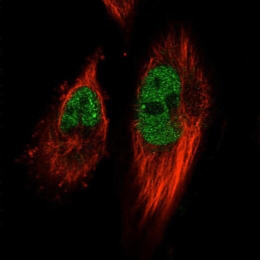 Immunocytochemistry/ Immunofluorescence - Anti-TACC2 antibody (ab204891)