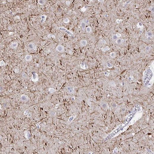 Immunohistochemistry (Formalin/PFA-fixed paraffin-embedded sections) - Anti-Neurofilament antibody (ab204893)