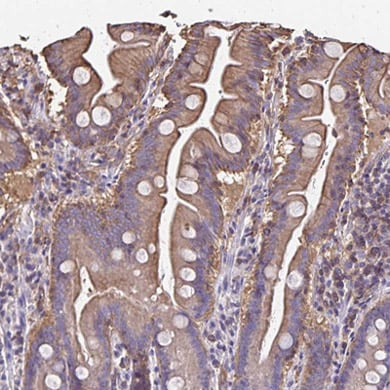 Immunohistochemistry (Formalin/PFA-fixed paraffin-embedded sections) - Anti-RPRML antibody (ab204896)