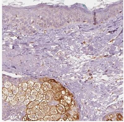 Immunohistochemistry (Formalin/PFA-fixed paraffin-embedded sections) - Anti-DGAT2L4 antibody (ab204904)