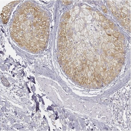 Immunohistochemistry (Formalin/PFA-fixed paraffin-embedded sections) - Anti-DGAT2L4 antibody (ab204904)