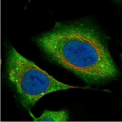 Immunocytochemistry/ Immunofluorescence - Anti-REPS1 antibody (ab204906)