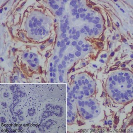 Immunohistochemistry (Formalin/PFA-fixed paraffin-embedded sections) - Anti-TEM1 antibody [EPR17081] (ab204914)