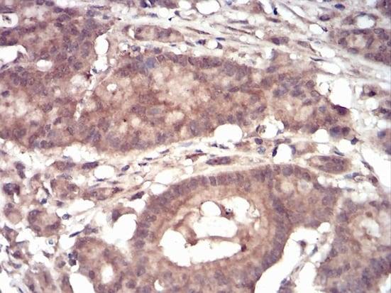 Immunohistochemistry (Formalin/PFA-fixed paraffin-embedded sections) - Anti-eIF5A antibody [4E10F6] (ab204939)
