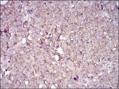 Immunohistochemistry (Formalin/PFA-fixed paraffin-embedded sections) - Anti-CD38 antibody [5C5C3] - Extracellular domain (ab204940)