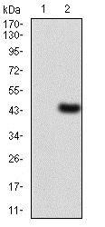 Western blot - Anti-LDL Receptor antibody [1B10H10] (ab204941)