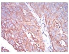 Immunohistochemistry (Formalin/PFA-fixed paraffin-embedded sections) - Anti-beta I Tubulin antibody [2A1A9] (ab204947)