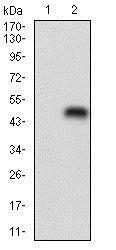 Western blot - Anti-NME2 antibody [4G7A8] (ab204958)